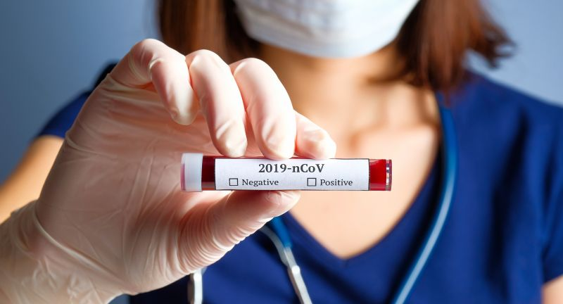 coronavirus, blood, test, tube, 2019-ncov, analysis, bacterial, china, chinese, clinic, container, corona, cov, death, diagnostic, disease, doctor, epidemic, equipment, female, flu, hand, health, holding, hospital, infection, lab, laboratory, mask, medical, medicine, mers, microbe, microbiology, ncov, negative, novel, pandemic, patient, pneumonia, positive, research, respiratory, scientist, specimen, vaccine, virology, virus, woman, wuhan, coronavirus, covid-19, 2019-ncov, blood, test, tube, analysis, bacterial, china, chinese, clinic, container, corona, cov, death, diagnostic, disease, doctor, epidemic, equipment, female, flu, hand, health, holding, hospital, infection, lab, laboratory, mask, medical, medicine, mers, microbe, microbiology, ncov, negative, novel, pandemic, patient, pneumonia, positive, research, respiratory, scientist, specimen, vaccine, virus, woman, wuhan